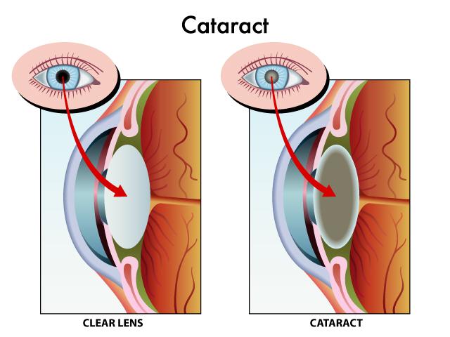Twin Falls Cataract Surgery