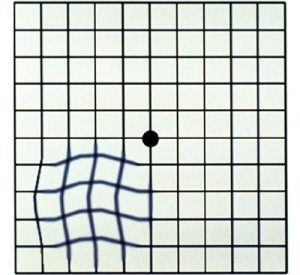 Amsler grid with wavy lines