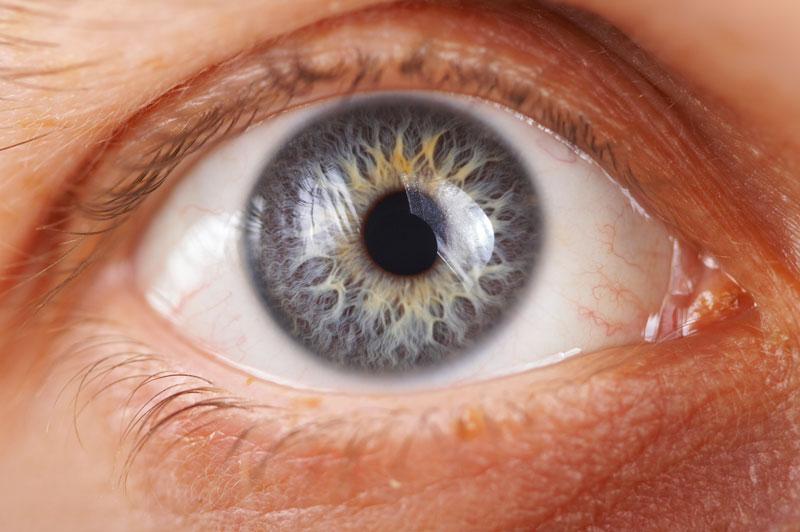 """Résultat de recherche d'images pour """"Glaucoma"""""""