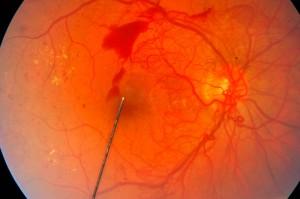 severe-proliferative-diabetic-retinopathy
